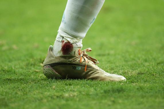 This is how Messi's ankle ended after the Copa América semifinal