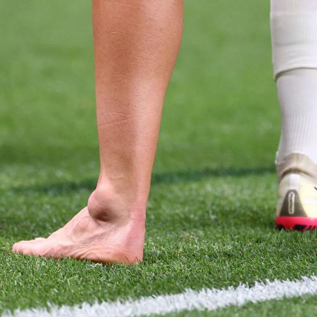 Dani Ceballos suffered a hard stomp in Spain vs. Egypt. (Photo: Agencies)
